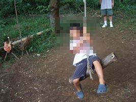 公園にある子供遊具であわや両指切断する大事故になるところだった
